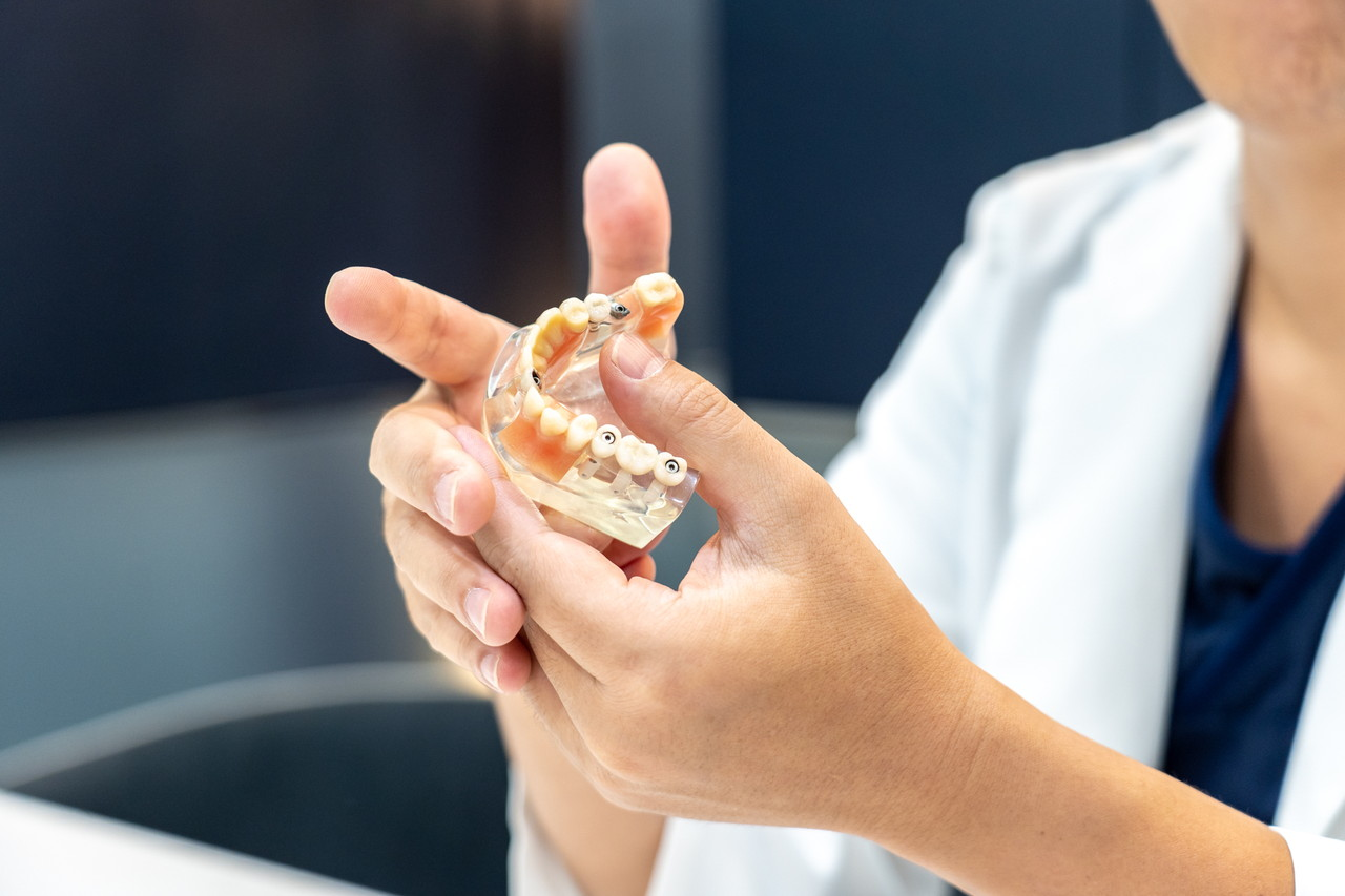 代々木駅前歯科 矯正歯科 口腔外科ブログイメージ
